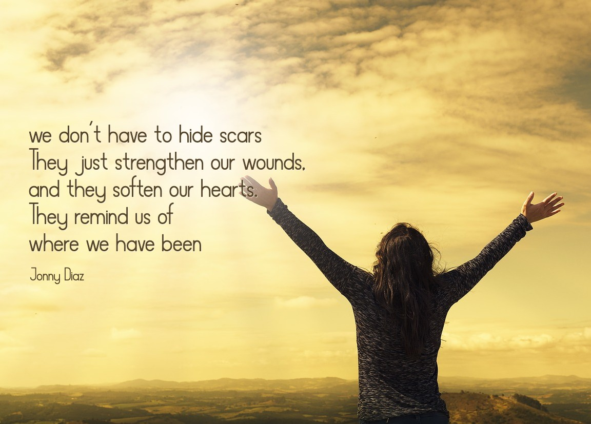 We don't have to hide scars. Article on losing children by Conexus Counselling